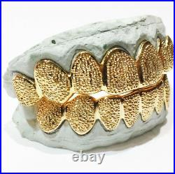 Sterling Silver With18K Yellow Gold Plated Diamond Dust Cut Custom Fit Grillz